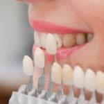 3 intrebari si raspunsuri despre fatete dentare